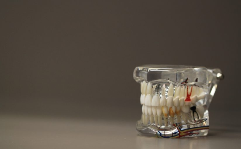 Zła sposób odżywiania się to większe ubytki w jamie ustnej a również ich utratę